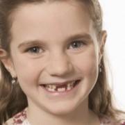 Как удалить молочный зуб